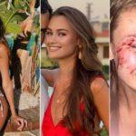 В Турции на пляже избили украинскую топ-модель